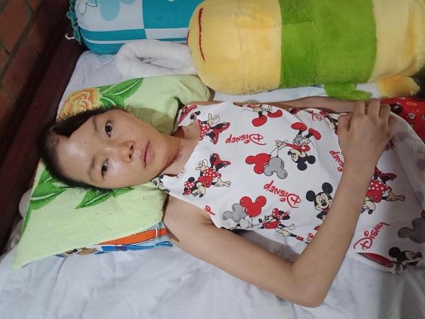 Bi kịch cuộc đời của cô gái xinh đẹp bị khuyết 1/2 hộp sọ sau tai nạn giao thông
