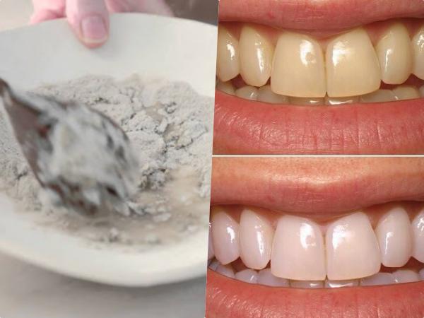 3 cách làm trắng răng bằng nguyên liệu tự nhiên giúp nàng sở hữu nụ cười tỏa nắng dịp 14/2