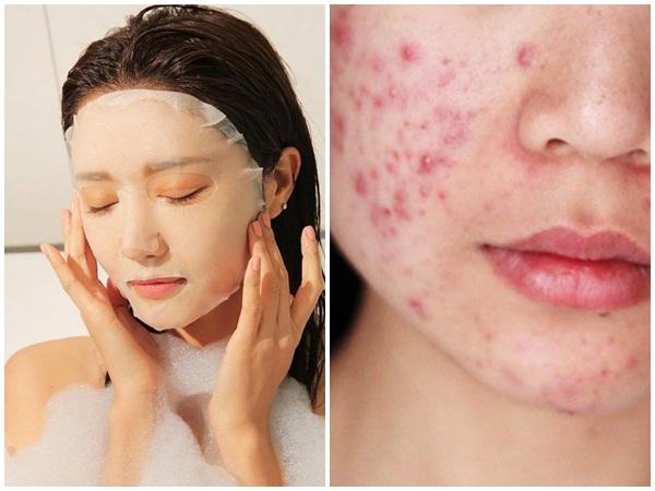 Học theo idol xứ Hàn đắp 5 miếng mặt nạ dưỡng da mỗi ngày, cô gái trẻ bị nổi mụn chi chít vì mắc phải sai lầm này