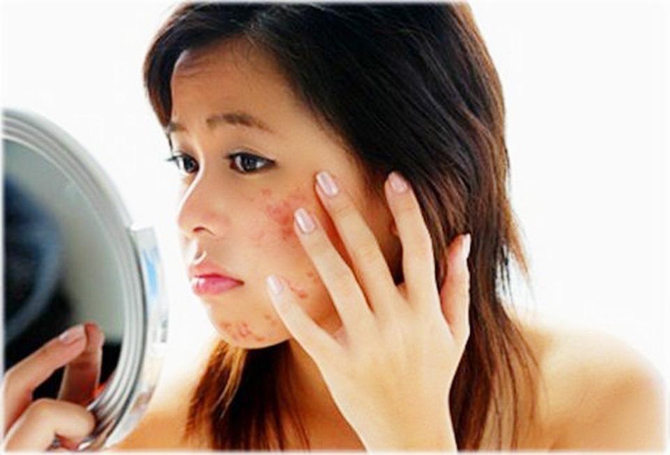 4 sai lầm khiến da bị mụn nhiều hơn hầu như ai cũng mắc phải