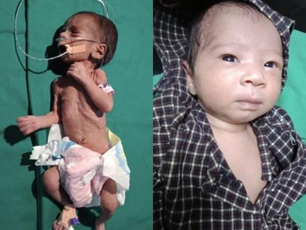 Bị chôn sống nhiều ngày, bé gái nặng hơn 1 kg hồi sinh kỳ diệu