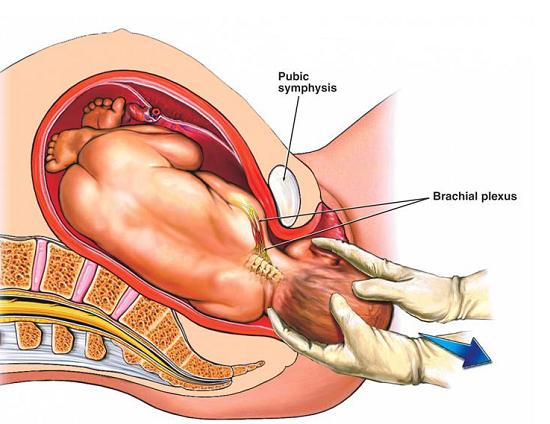 1001 điều phụ nữ cần biết sớm về vết khâu tầng sinh môn bị hở - Ảnh 1