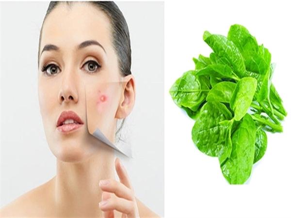 Cách chữa mụn bằng rau mồng tơi nghiền với muối đắp mặt cực hiệu quả - Ảnh 3