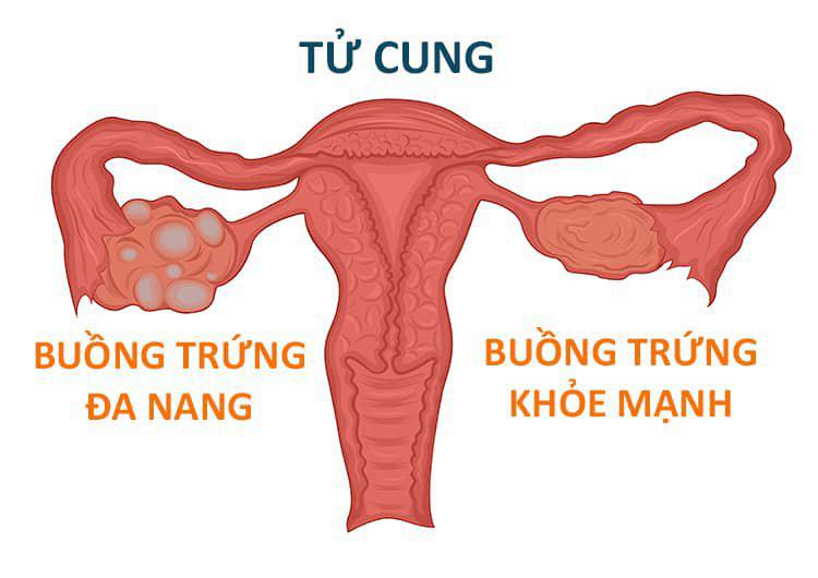 da nang buong trung co chua duoc khong ảnh 4