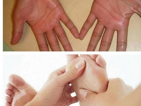Tiết lộ cách chữa bệnh ra mồ hôi tay chân tại nhà đơn giản, hiệu quả nhất