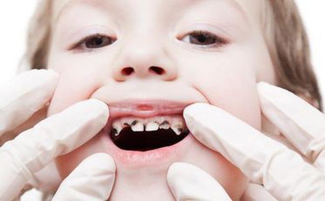 Dấu hiệu nhận biết trẻ em bị sâu răng và cách bảo vệ hàm răng chắc, đẹp