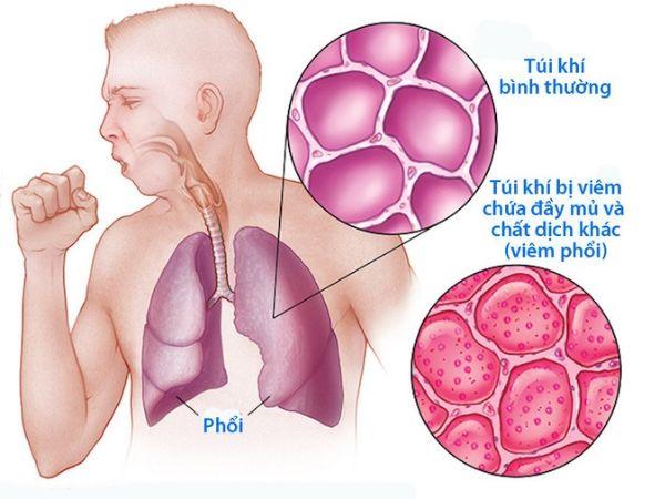 Bệnh viêm phổi có lây không và cách phòng bệnh như thế nào?