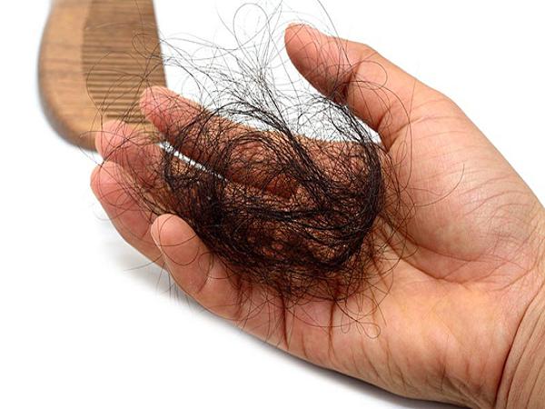 Hướng dẫn cách trị rụng tóc từ thiên nhiên