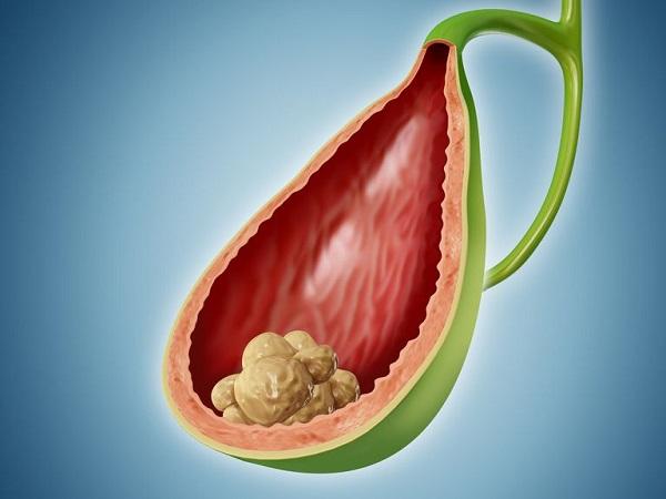 Bài thuốc chữa sỏi mật bằng quả sung