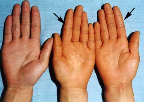 Da bị vàng là thiếu chất gì? Biện pháp khắc phục khi bị vàng da
