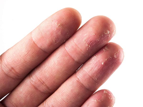 Cách chữa da tay bị khô hiệu quả