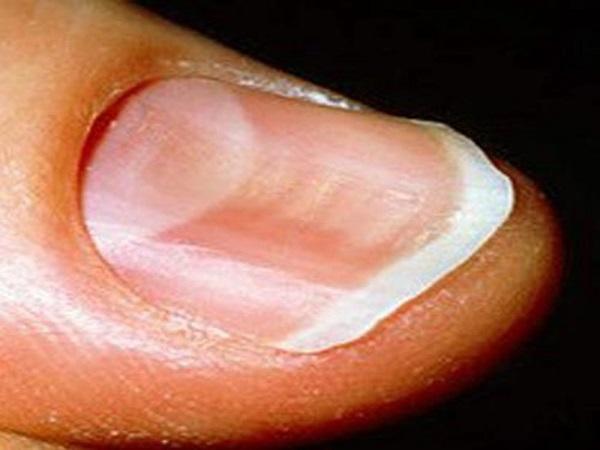 Móng tay bị lõm có phải là bệnh hay không?