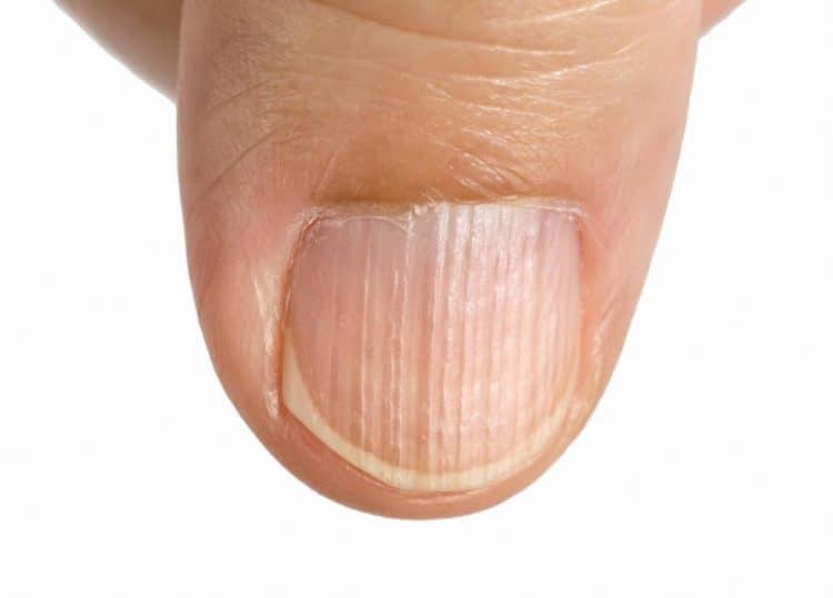 Móng tay có sọc là dấu hiệu của bệnh gì?