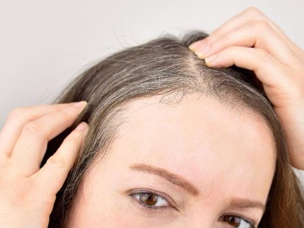 Tìm hiểu nguyên nhân tóc bạc sớm ở người trẻ tuổi