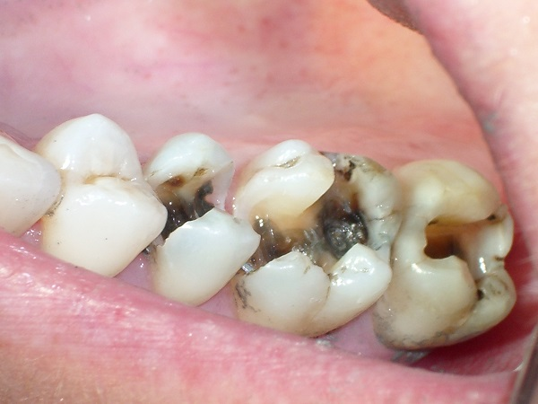 Sâu răng hàm dưới có ảnh hưởng gì?