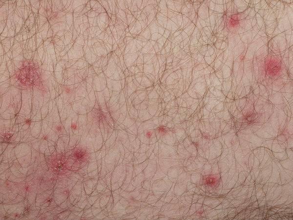 Những cách trị viêm nang lông đơn giản mà hiệu quả không ngờ