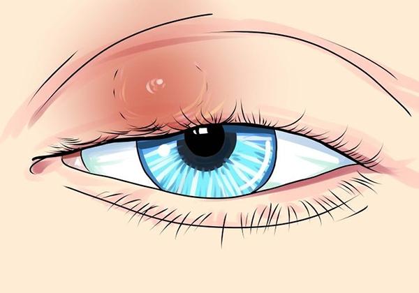 Viêm mí mắt trên gây khó chịu cho người bệnh