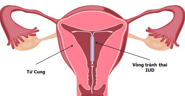 dau hieu vong tranh thai bi lech