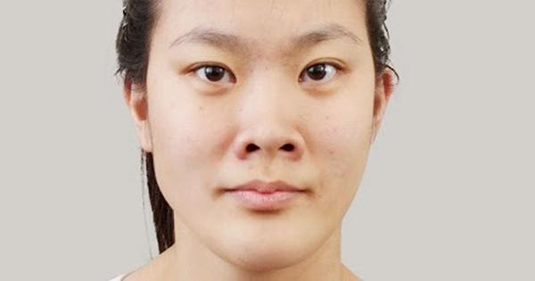 Mũi tẹt khiến cho gương mặt kém sắc
