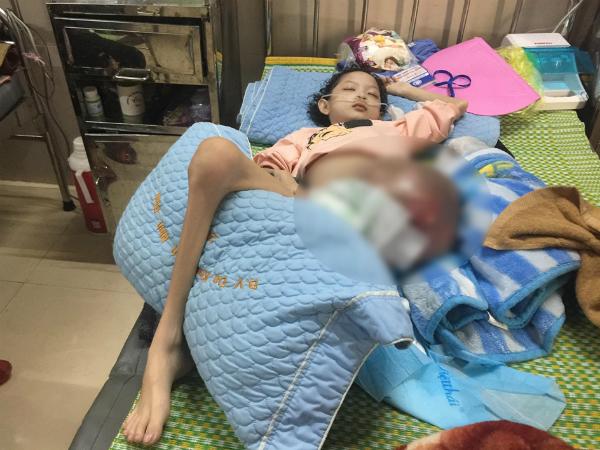 """Bé gái 10 tuổi mắc ung thư xương, mẹ đau nhói lòng khi con hỏi """"bao giờ được về nhà"""" - Ảnh 1"""