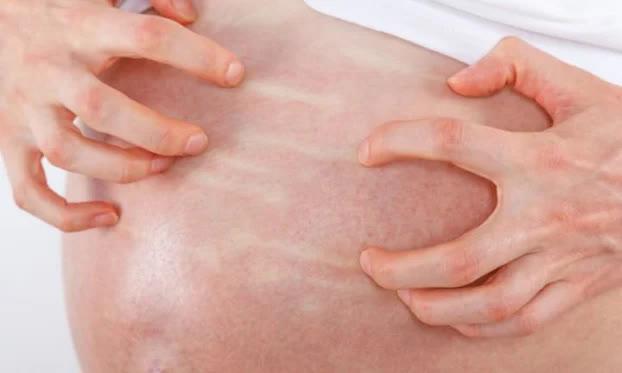 4 dấu hiệu bất thường trong thai kỳ cảnh báo con có thể gặp nguy hiểm mẹ cần đặc biệt lưu ý - Ảnh 2
