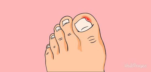 Bị đau ngón chân suốt 6 năm trời, người phụ nữ 39 tuổi đi khám mới phát hiện móng đã ăn sâu vào thịt - Ảnh 2