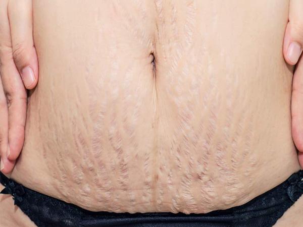Cách chữa rạn da sau sinh đơn giản, hiệu quả bằng nguyên liệu thiên nhiên