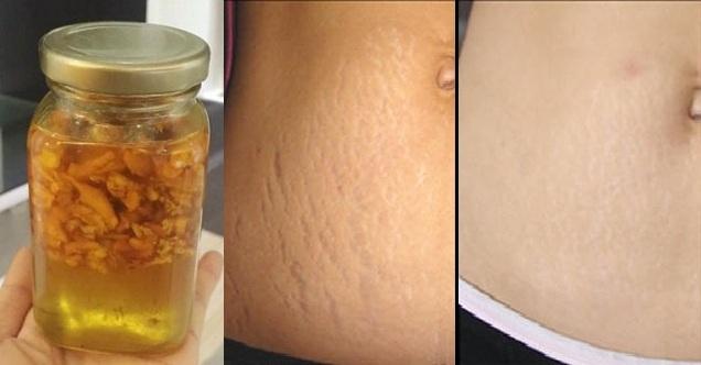 4 công thức từ củ nghệ để rạn da sau sinh không còn là nỗi ám ảnh của phụ nữ