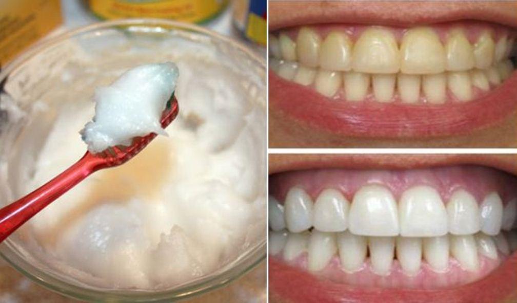 Sở hữu nụ cười tỏa nắng với cách làm trắng răng cực đơn giản tại nhà