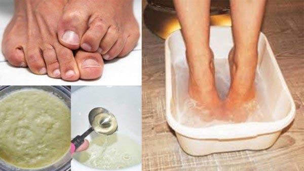 Đánh bại đôi chân bốc mùi với công thức trị hôi chân tại nhà từ củ gừng