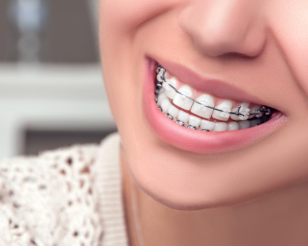Hướng dẫn chi tiết cách chăm sóc răng sau khi tháo niềng