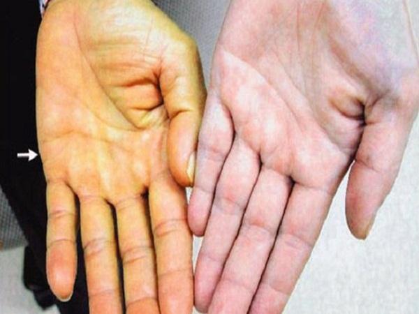 Gan là nhà máy giải độc và bài tiết chất có hại: Có 7 dấu hiệu sau là gan đang kêu cứu