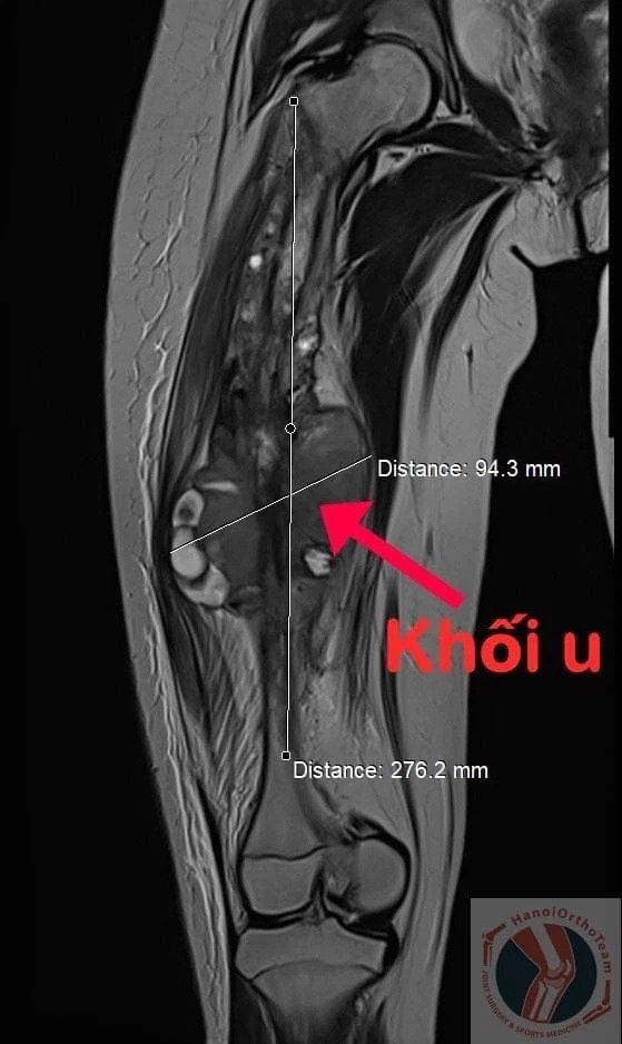 Vì ung thư, bé gái ở TP.HCM phải thay toàn bộ xương đùi - Ảnh 2