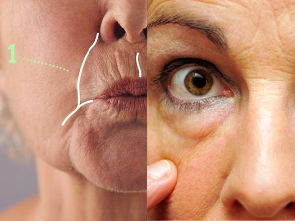 10 phương pháp loại bỏ nếp nhăn trên từng vùng da giúp phụ nữ trung niên trẻ ra vài tuổi