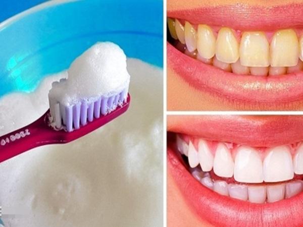 10 công thức tẩy trắng răng, loại sạch mảng bám ố vàng giúp nụ cười tỏa sáng