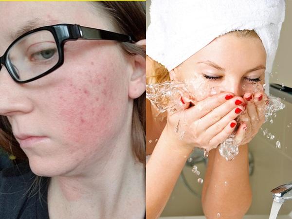 Hơn 90% phụ nữ đang mắc phải 10 sai lầm này mỗi ngày, vô tình khiến làn da hư tổn nặng nề