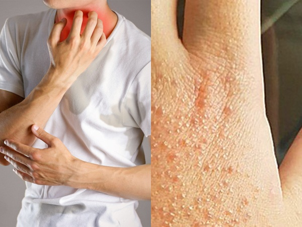 15 tác nhân trong cuộc sống thường ngày vô tình gây ra dị ứng, hủy hoại làn da mà không phải ai cũng biết