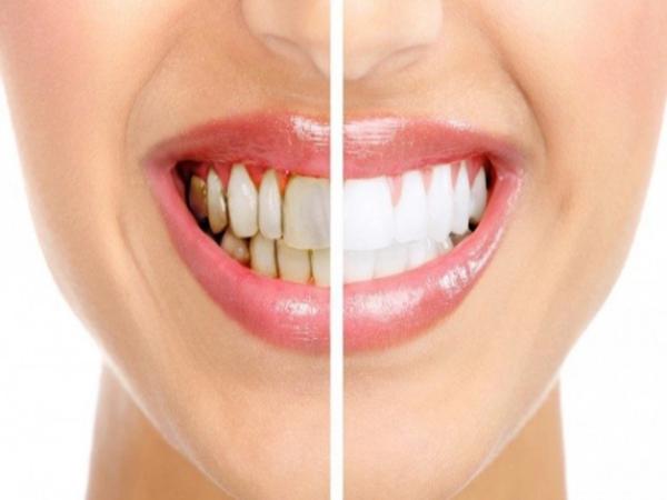 7 mẹo giúp loại bỏ mảng bám răng không cần đến nha sĩ