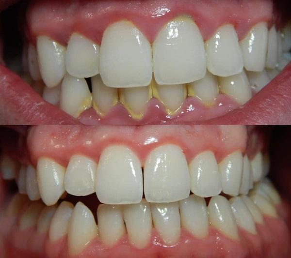 1 chiếc vỏ chanh – 5 công dụng làm đẹp đáng nể giúp dài mi, răng trắng, da đẹp không góc chết ai cũng ao ước - Ảnh 4