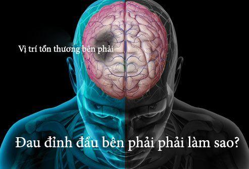 Các cơn đau cảnh báo bệnh nguy hiểm chết người không ai được phép lơ là - Ảnh 2