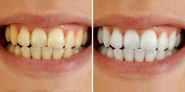 Cao răng tróc ra từng mảng, răng ố vàng đến mấy cũng trắng như bọc sứ chỉ với nguyên liệu vài nghìn này! - Ảnh 1