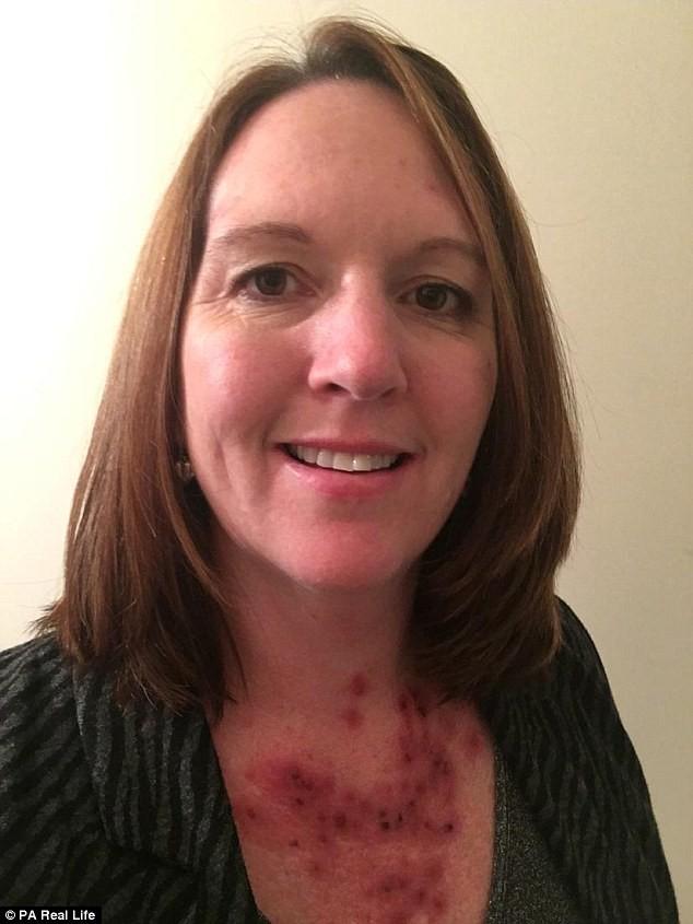 Chủ quan bỏ qua đốm mụn nhỏ trên ngực, cô gái không ngờ là dấu hiệu của bệnh ung thư da - Ảnh 4