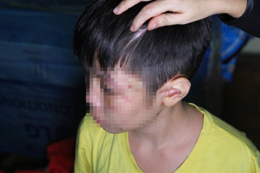 Vụ bé trai bị bố bạo hành: Hai năm không gặp con, sao mẹ ruột lại vô tâm thế! - Ảnh 1