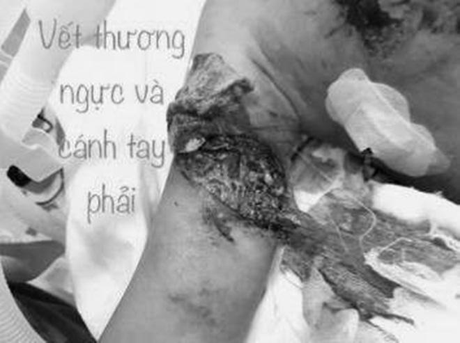Đồng Nai: Nghịch pháo ngày 8-3, bé gái 13 tuổi bị dập phổi, ngực và tay chấn thương nặng - Ảnh 1