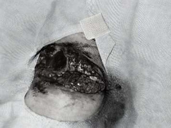 Đồng Nai: Nghịch pháo ngày 8-3, bé gái 13 tuổi bị dập phổi, ngực và tay chấn thương nặng - Ảnh 2