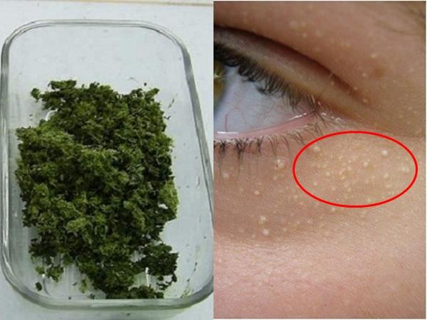 Top 3 cách trị mụn thịt mọc chi chít quanh mắt hiệu quả, an toàn và nhanh chóng nhất