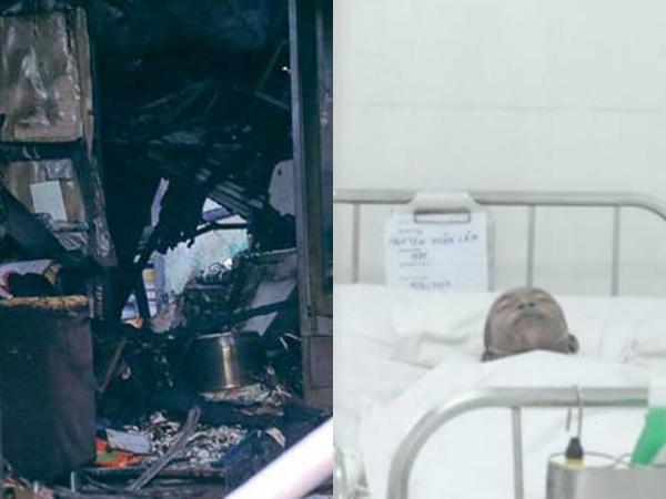 Cháy nhà khiến 3 mẹ con tử vong ở TP.HCM: Nạn nhân may mắn thoát chết bị bỏng toàn thân