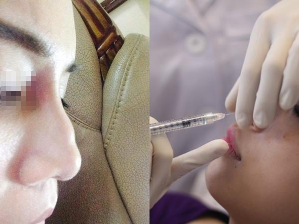 Tiêm chất nâng mũi, cô gái trẻ bị đột quỵ và mù mắt