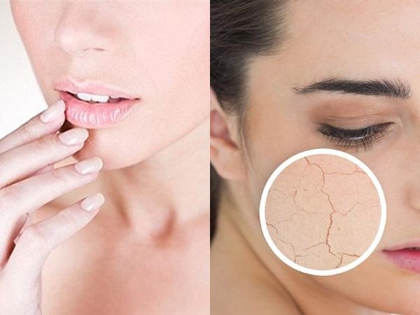 Dấu hiệu của làn da bị thiếu chất