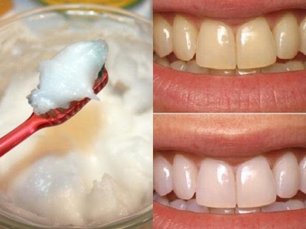 Dùng baking soda theo công thức này, không cần đến nha sĩ, răng vẫn trắng bóc như bọc sứ